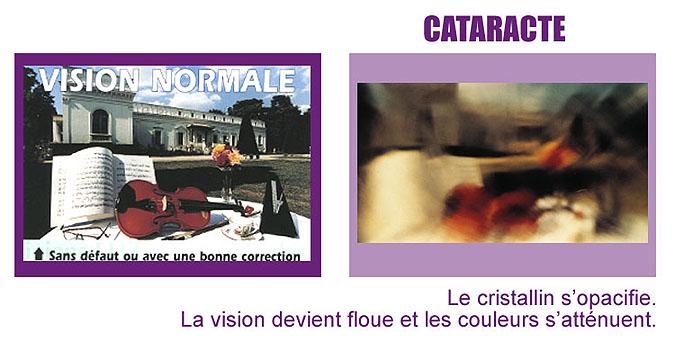 vision cataracte