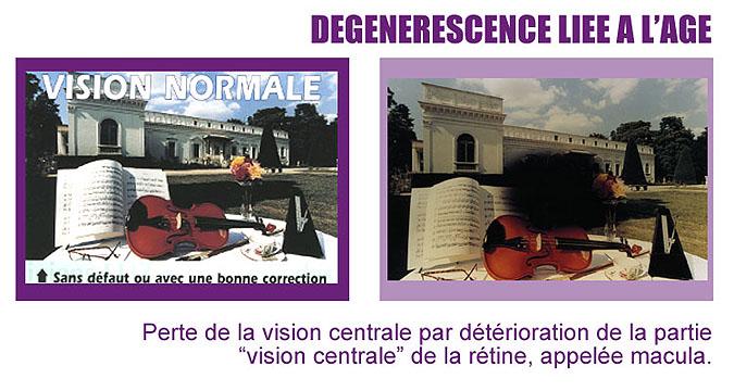 vision dégénérescence liée à l'age