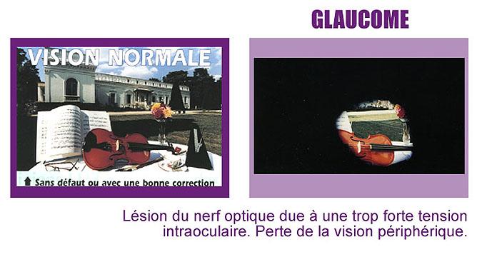 vision glaucome
