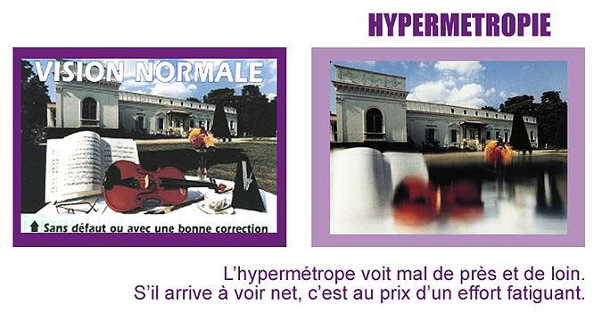 vision hypermétropie